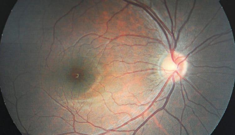 Glaucoma Awareness